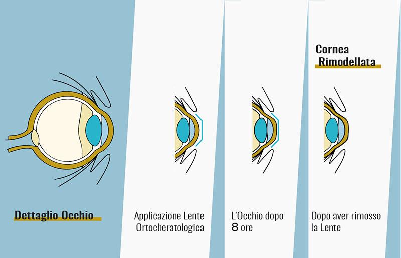 Come funziona la visita ortcheratologia