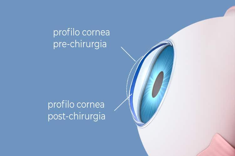 Chirurgia refrattiva Profilo Cornea